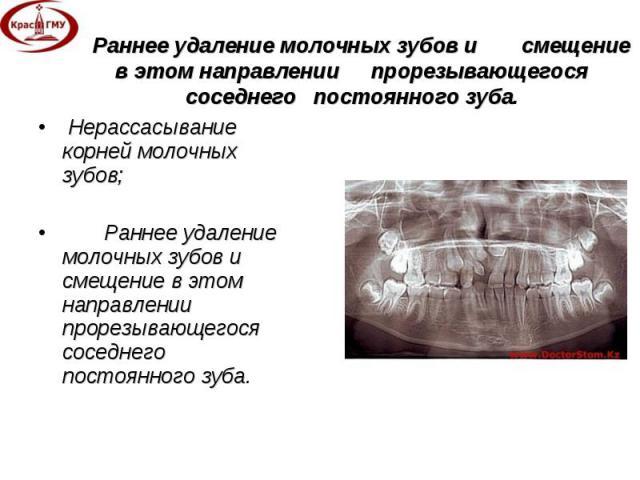Нерассасывание корней молочных зубов; Нерассасывание корней молочных зубов; Раннее удаление молочных зубов и смещение в этом направлении прорезывающегося соседнего постоянного зуба.