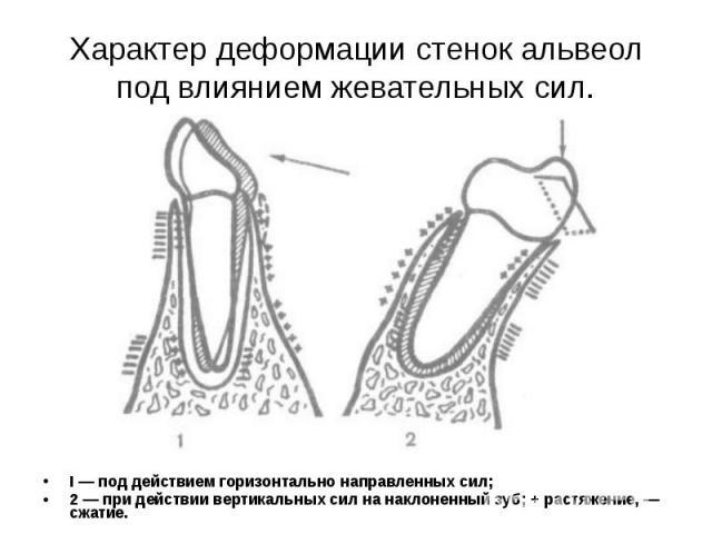 I — под действием горизонтально направленных сил; I — под действием горизонтально направленных сил; 2 — при действии вертикальных сил на наклоненный зуб; + растяжение, — сжатие.