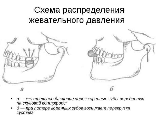 а — жевательное давление через коренные зубы передается на скуловой контрфорс; а — жевательное давление через коренные зубы передается на скуловой контрфорс; б — при потере коренных зубов возникает перегрузка сустава.