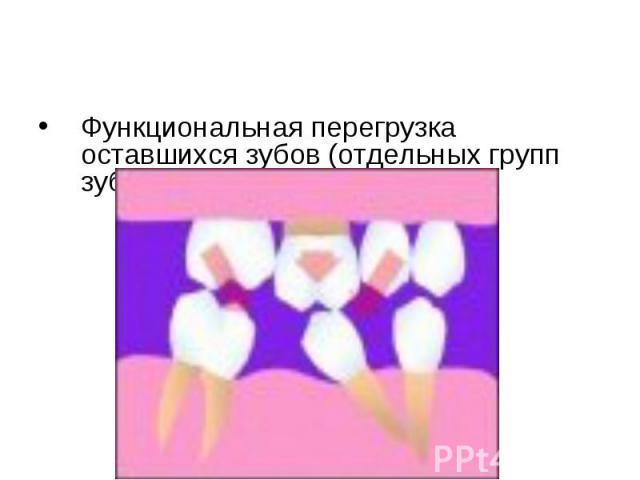 Функциональная перегрузка оставшихся зубов (отдельных групп зубов). Функциональная перегрузка оставшихся зубов (отдельных групп зубов).