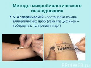 5. Аллергический –постановка кожно-аллергических проб (узко специфичен – туберку