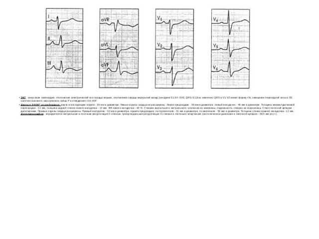 ЭКГ синусовая тахикардия, отклонение электрической оси сердца вправо, отклонение сердца верхушкой назад (синдром S1-SII -SIII), QRS-0,12см, комплекс QRS в V1-V2 имеет форму rSr, смещение переходной зоны в S5, наличие высокого заостренного зубца Р в …