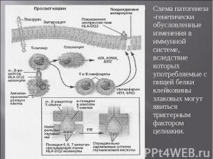 Схема патогенеза -генетически обусловленные изменения в иммунной системе, вследс