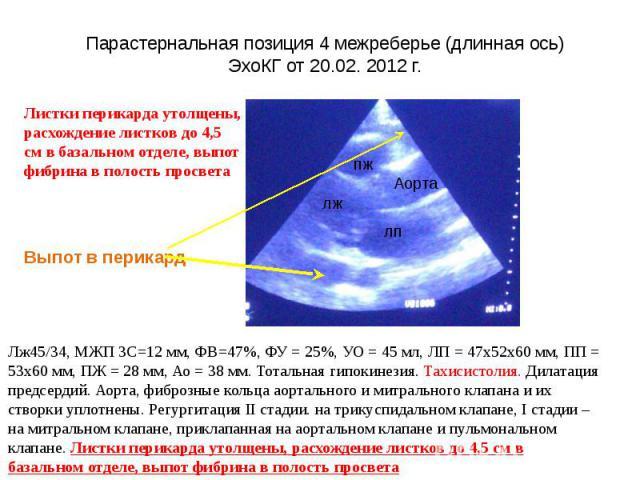 Парастернальная позиция 4 межреберье (длинная ось) ЭхоКГ от 20.02. 2012 г.