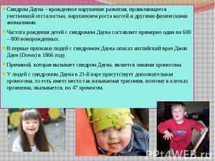 Синдром Дауна – врожденное нарушение развития, проявляющееся умственной отсталос