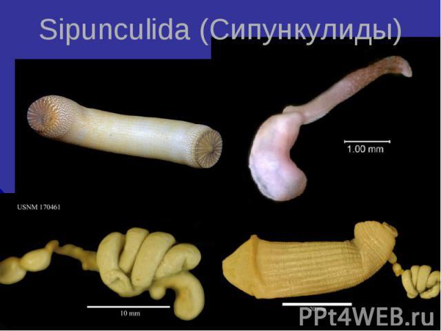 Sipunculida (Сипункулиды)