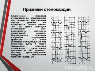 Клинические признаки стенокардии не специфичны; при перкуссии, аускультации серд