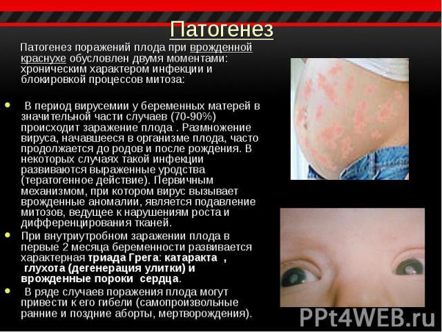Патогенез поражений плода при врожденной краснухе обусловлен двумя моментами: хроническим характером инфекции и блокировкой процессов митоза: Патогенез поражений плода при врожденной краснухе обусловлен двумя моментами: хроническим характером инфекц…