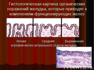 Легкая Средняя Выраженная Легкая Средняя Выраженная атрофия желез антрального от
