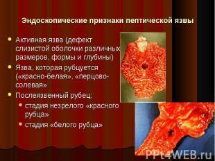Активная язва (дефект слизистой оболочки различных размеров, формы и глубины) Ак