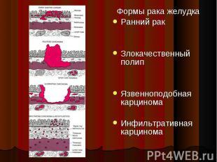 Формы рака желудка Формы рака желудка Ранний рак Злокачественный полип Язвеннопо