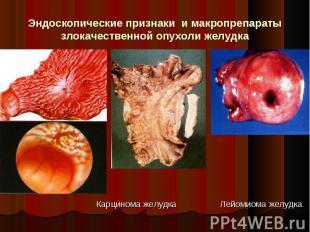Карцинома желудка Лейомиома желудка Карцинома желудка Лейомиома желудка