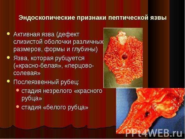Активная язва (дефект слизистой оболочки различных размеров, формы и глубины) Активная язва (дефект слизистой оболочки различных размеров, формы и глубины) Язва, которая рубцуется («красно-белая», «перцово-солевая» Послеязвенный рубец: стадия незрел…