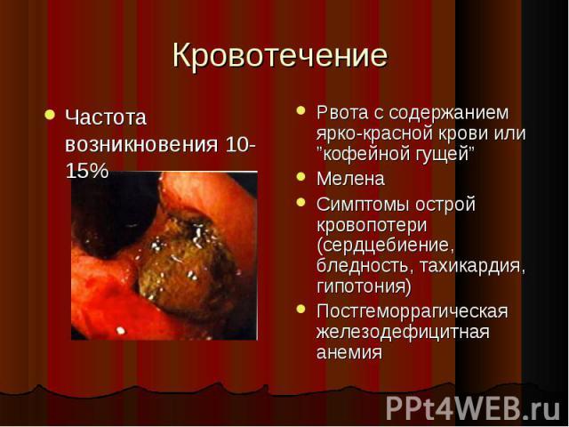 """Рвота с содержанием ярко-красной крови или """"кофейной гущей"""" Рвота с содержанием ярко-красной крови или """"кофейной гущей"""" Мелена Симптомы острой кровопотери (сердцебиение, бледность, тахикардия, гипотония) Постгеморрагическая железодефицитная анемия"""