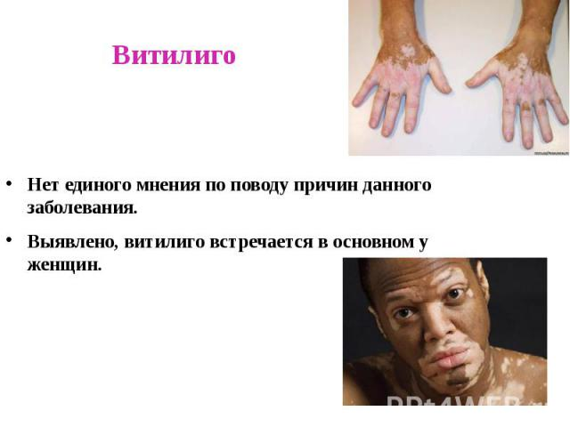 Витилиго Нет единого мнения по поводу причин данного заболевания. Выявлено, витилиго встречается в основном у женщин.