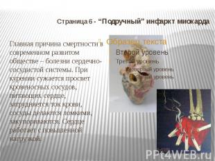 """Страница 6 - """"Подручный"""" инфаркт миокарда Главная причина смертности в современн"""