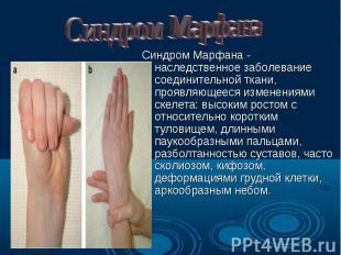 Синдром Марфана - наследственное заболевание соединительной ткани, проявляющееся