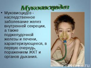 Муковисцидоз - наследственное заболевание желез внутренней секреции, а также под