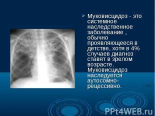 Муковисцидоз - это системное наследственное заболевание , обычно проявляющееся в