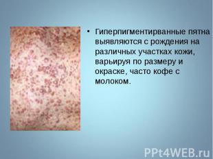 Гиперпигментирванные пятна выявляются с рождения на различных участках кожи, вар