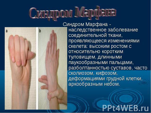 Синдром Марфана - наследственное заболевание соединительной ткани, проявляющееся изменениями скелета: высоким ростом с относительно коротким туловищем, длинными паукообразными пальцами, разболтанностью суставов, часто сколиозом, кифозом, деформациям…