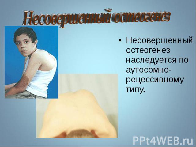 Несовершенный остеогенез наследуется по аутосомно-рецессивному типу. Несовершенный остеогенез наследуется по аутосомно-рецессивному типу.