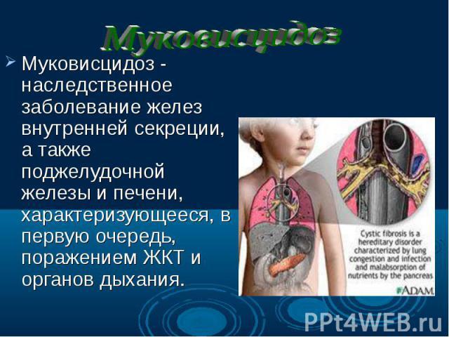 Муковисцидоз - наследственное заболевание желез внутренней секреции, а также поджелудочной железы и печени, характеризующееся, в первую очередь, поражением ЖКТ и органов дыхания. Муковисцидоз - наследственное заболевание желез внутренней секреции, а…