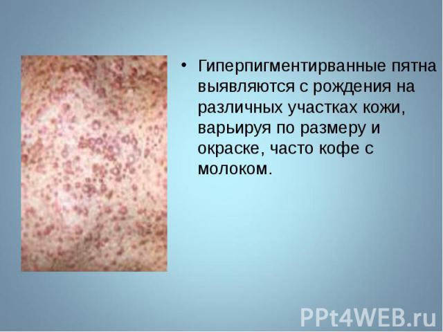 Гиперпигментирванные пятна выявляются с рождения на различных участках кожи, варьируя по размеру и окраске, часто кофе с молоком. Гиперпигментирванные пятна выявляются с рождения на различных участках кожи, варьируя по размеру и окраске, часто кофе …