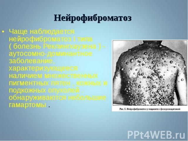Чаще наблюдается нейрофиброматоз I типа ( болезнь Реклингхаузена ) - аутосомно-доминантное заболевание, характеризующееся наличием множественных пигментных пятен , кожных и подкожных опухолей . обнаруживаются небольшие гамартомы . Чаще наблюдается н…