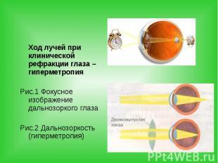 Ход лучей при клинической рефракции глаза – гиперметропия Ход лучей при клиничес