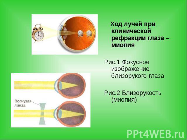 Ход лучей при клинической рефракции глаза – миопия Ход лучей при клинической рефракции глаза – миопия Рис.1 Фокусное изображение близорукого глаза Рис.2 Близорукость (миопия)