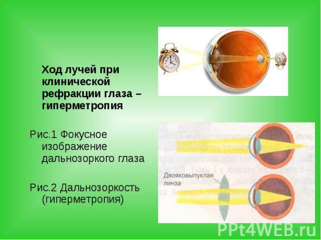 Ход лучей при клинической рефракции глаза – гиперметропия Ход лучей при клинической рефракции глаза – гиперметропия Рис.1 Фокусное изображение дальнозоркого глаза Рис.2 Дальнозоркость (гиперметропия)