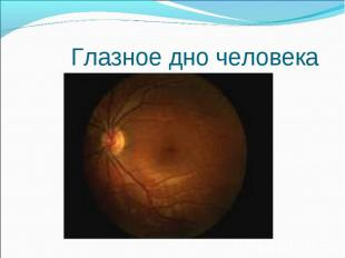 Глазное дно человека