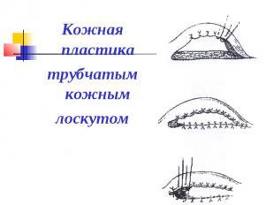 Кожная пластика трубчатым кожным лоскутом