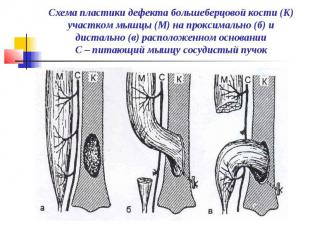 Схема пластики дефекта большеберцовой кости (К) участком мышцы (М) на проксималь