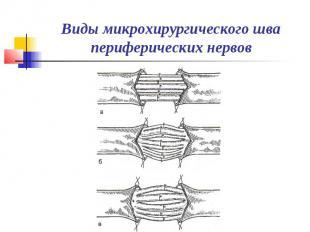 Виды микрохирургического шва периферических нервов