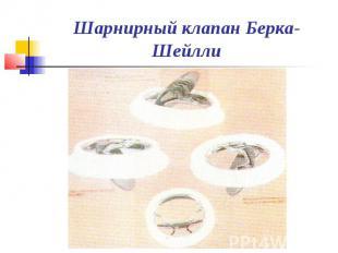 Шарнирный клапан Берка-Шейлли