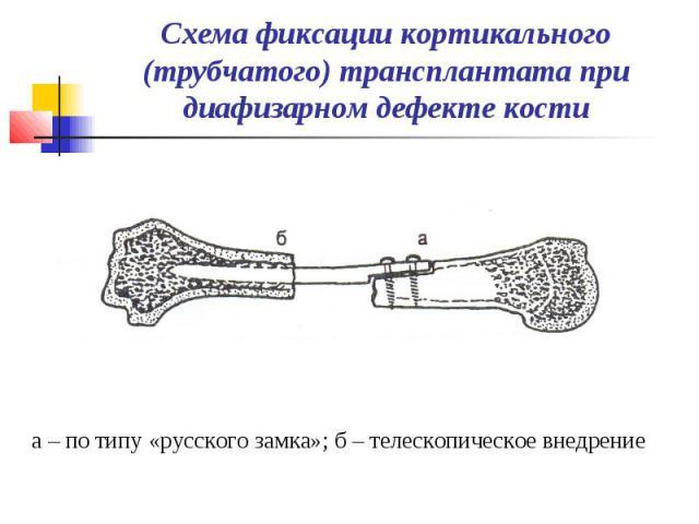 Схема фиксации кортикального (трубчатого) трансплантата при диафизарном дефекте кости а – по типу «русского замка»; б – телескопическое внедрение