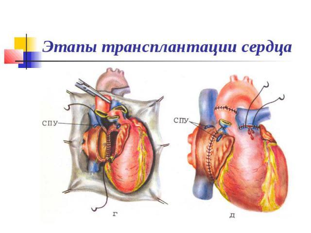 Этапы трансплантации сердца