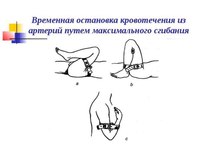 Временная остановка кровотечения из артерий путем максимального сгибания