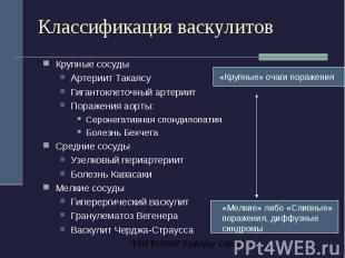 Классификация васкулитов Крупные сосуды Артериит Такаясу Гигантоклеточный артери