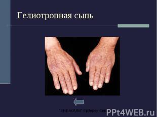 Гелиотропная сыпь