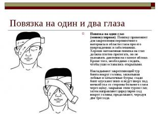 Повязка на один глаз (монокулярная). Повязку применяют для закрепления перевязоч