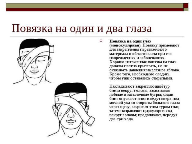 Повязка на один глаз (монокулярная). Повязку применяют для закрепления перевязочного материала в области глаза при его повреждениях и заболеваниях. Хорошо натоженная повязка на глаз должна плотно прилегать, но не оказывать давления на глазное яблоко…