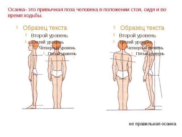 Осанка- это привычная поза человека в положении стоя, сидя и во время ходьбы. правильная осанка