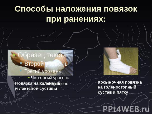 Способы наложения повязок при ранениях: