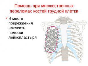 Помощь при множественных переломах костей грудной клетки В месте повреждения нак