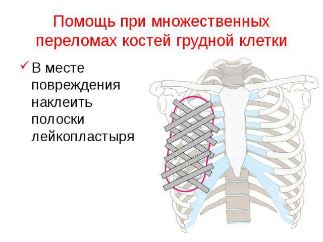 Помощь при множественных переломах костей грудной клетки В месте повреждения наклеить полоски лейкопластыря