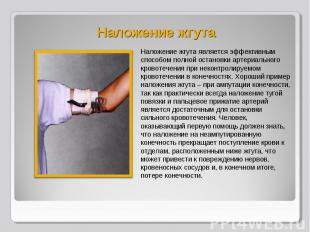 Наложение жгута является эффективным способом полной остановки артериального кро