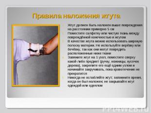 Жгут должен быть наложен выше повреждения на расстоянии примерно 5 см Жгут долже